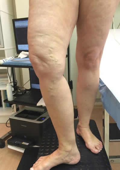 Sintomi di una malattia varicosa